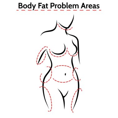 Female body fat problems areas poster