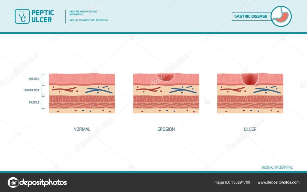 depositphotos_156291798 stock illustration stomach erosion and peptic ulcer stomach erosion and peptic ulcer stock vector © elenabs 156291798