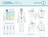 Eseguire il dolore e la postura