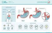 Fotografia Infografica di reflusso e bruciore di stomaco acido