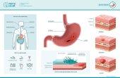 Fotografia Infographic di pylori di helicobacter e ulcera peptica