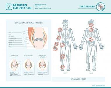 Rheumatoid arthritis, osteoarthritis and joint pain i