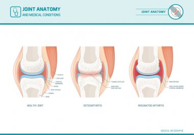 Joint anatomy, osteoarthritis and rheumatoid arthritis