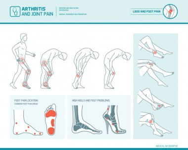 Foot pain, leg pain and arthritis infographic