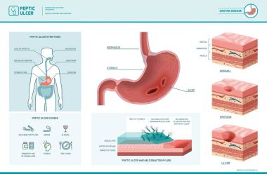 Peptic ulcer and helicobacter pylori infographic