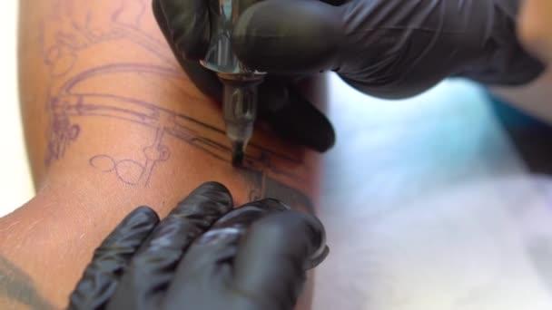 Tetování pigment injekce pod kůži