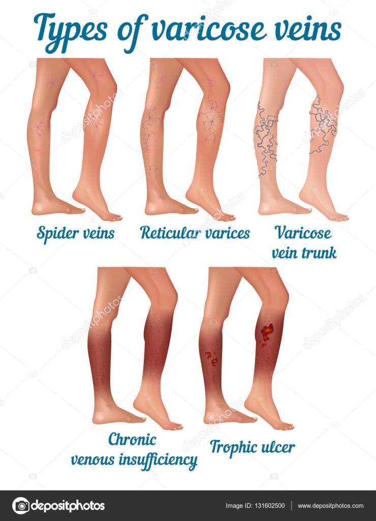 tipos de varices