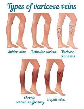 Types of varicose veins.