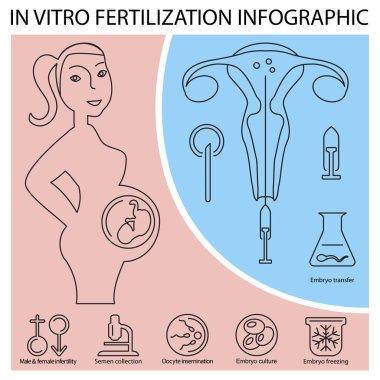 In vitro fertilization infographic