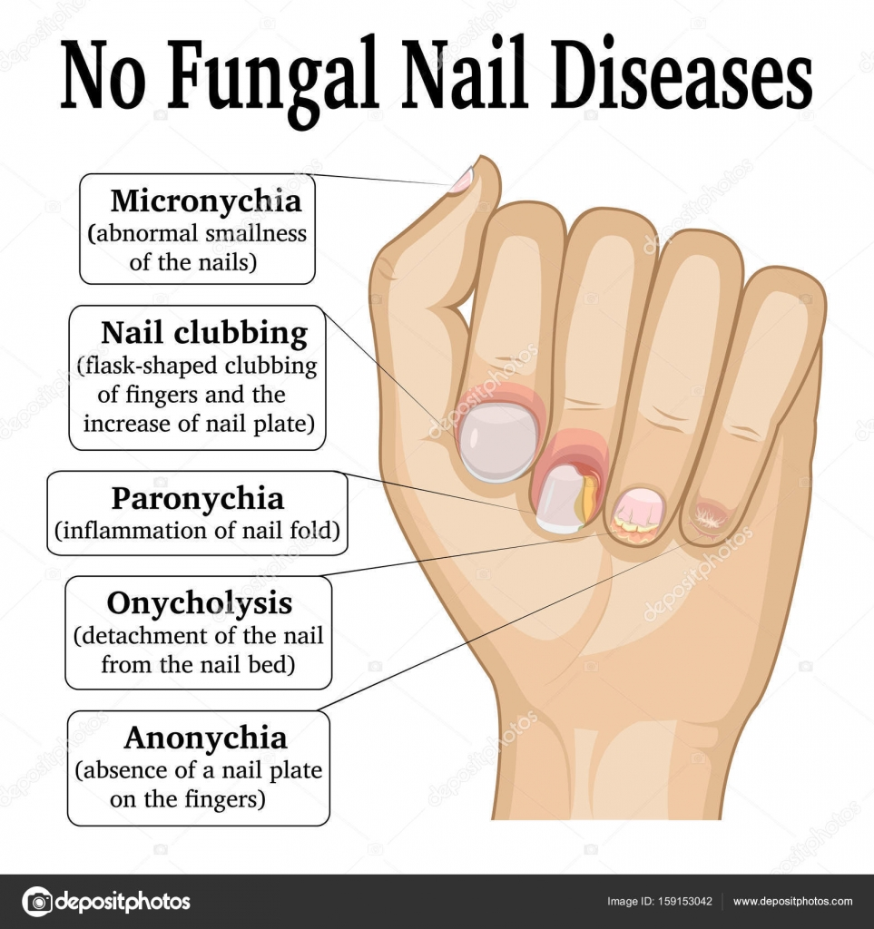 No Fungal Nail Disease — Stock Vector © scio21.ukr.net #159153042