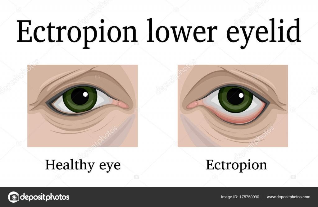 Ilustración Ectropión Del Párpado Inferior Para Comparación Muestra ...