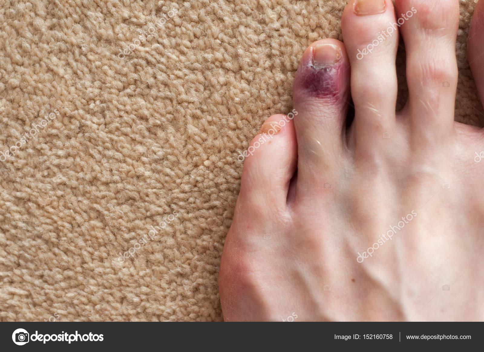 Demostración de dedo del pie roto, moretones en la piel debido a una ...