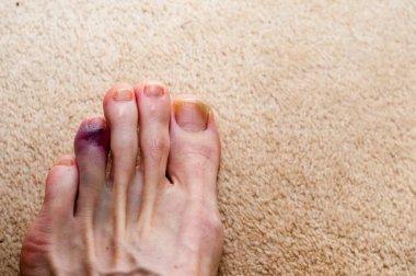 Broken toe showing bruising on skin due to injury