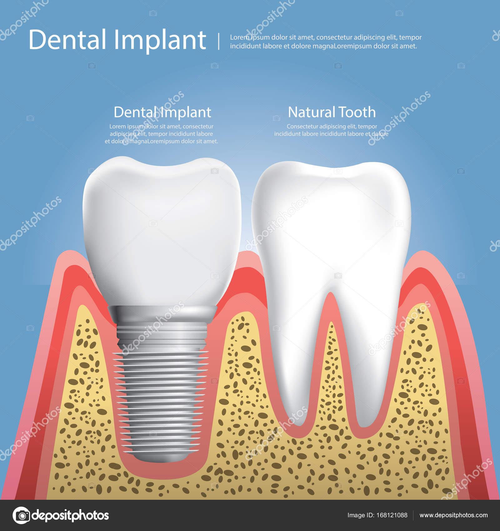 Los dientes humanos y Dental implante ilustración vectorial ...