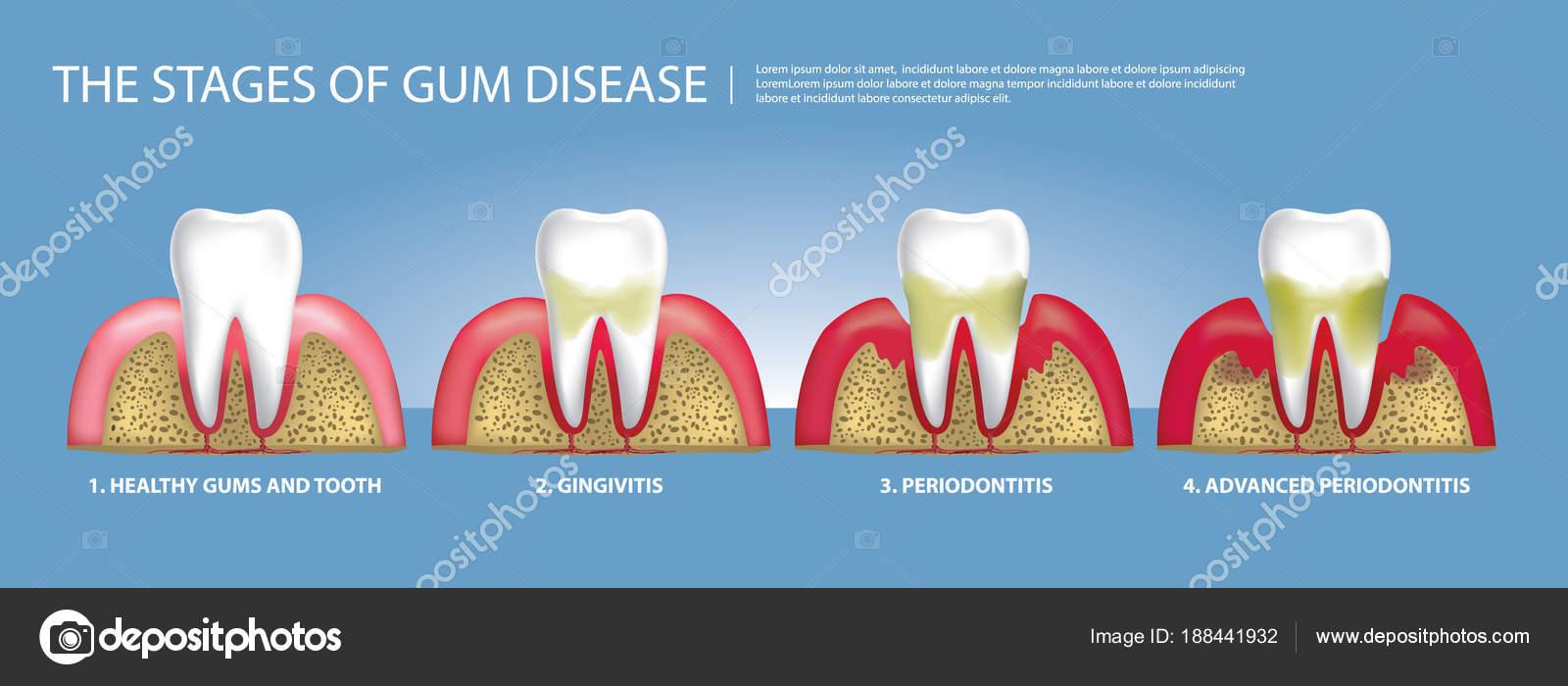 Menschliche Zähne Stufen Des Gum Disease Vektor Illustration ...