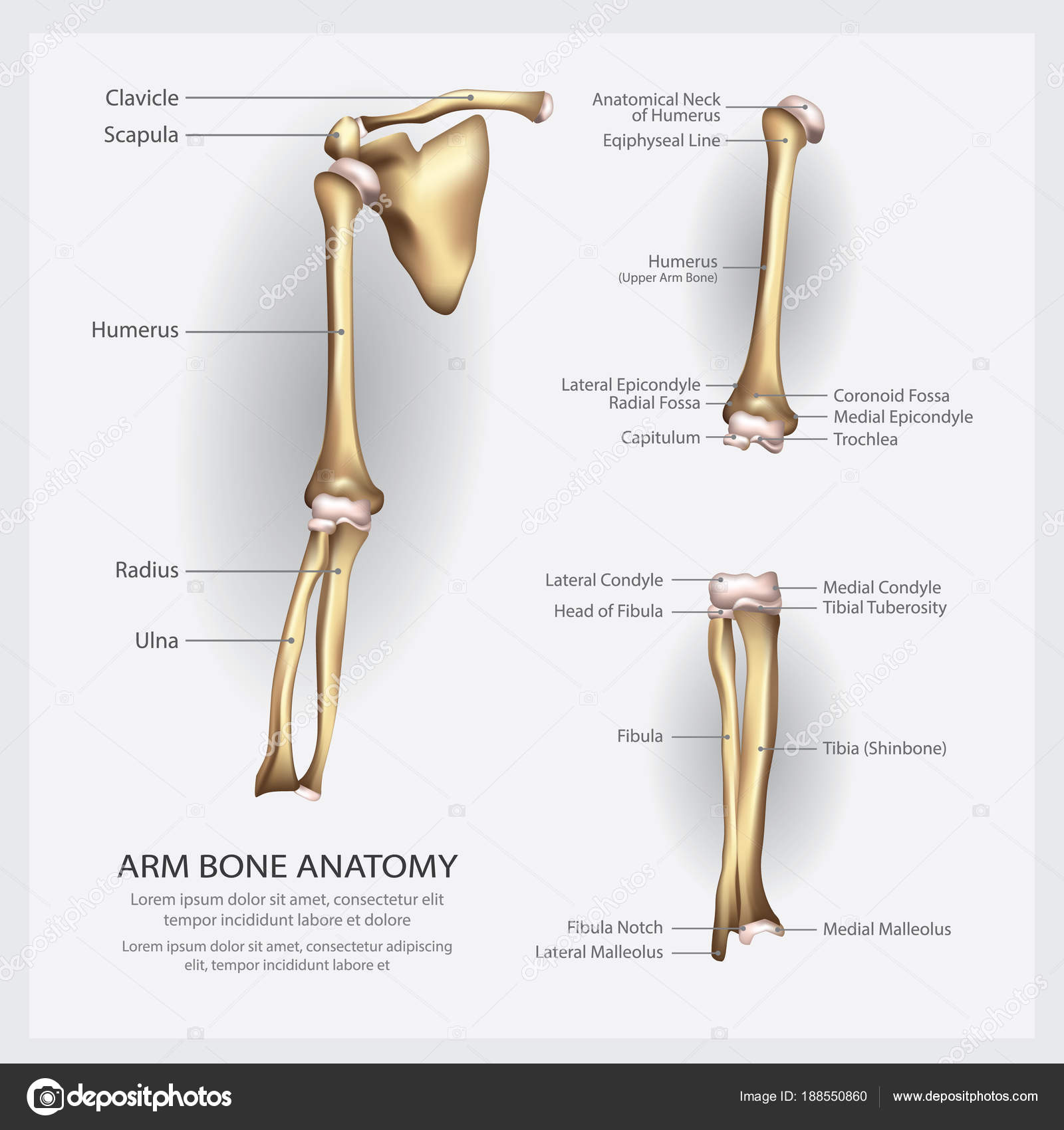 Arm Knochen Anatomie Mit Detail Vektor Illustration — Stockvektor ...
