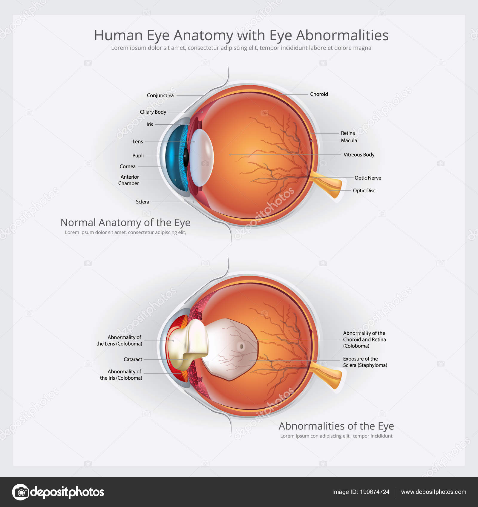 Anatomía Ojo Con Ojo Anormalidades Vector Ilustración — Vector de ...
