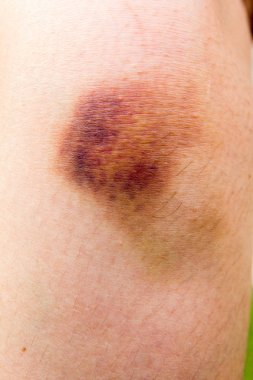 Brown bruise on woman knee background