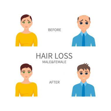 Male and female pattern baldness