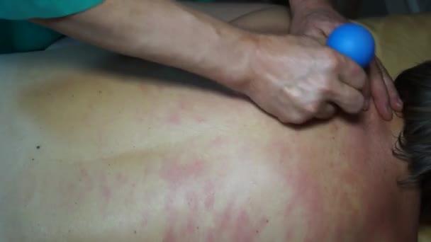 Mužské ruce lékaře se léčebné masáže na zadní straně ženy bankami. Profesionální techniky fungují na svaly zad, relaxaci, lámání spouštěcí body