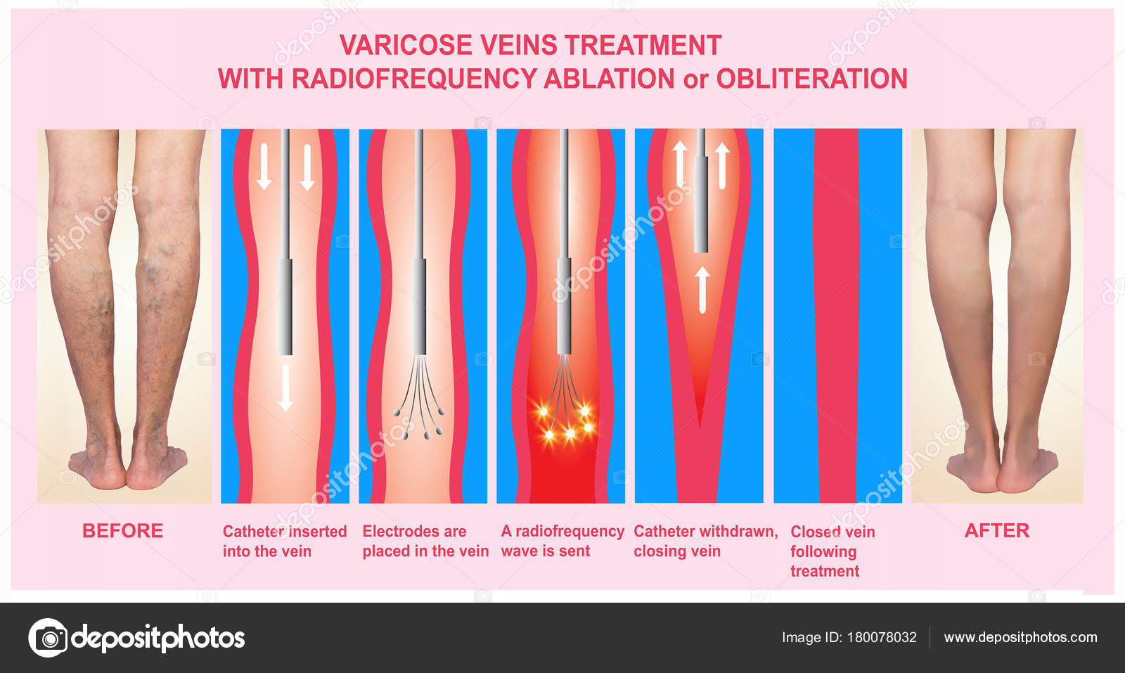 radiofrequency ablation varicose veins
