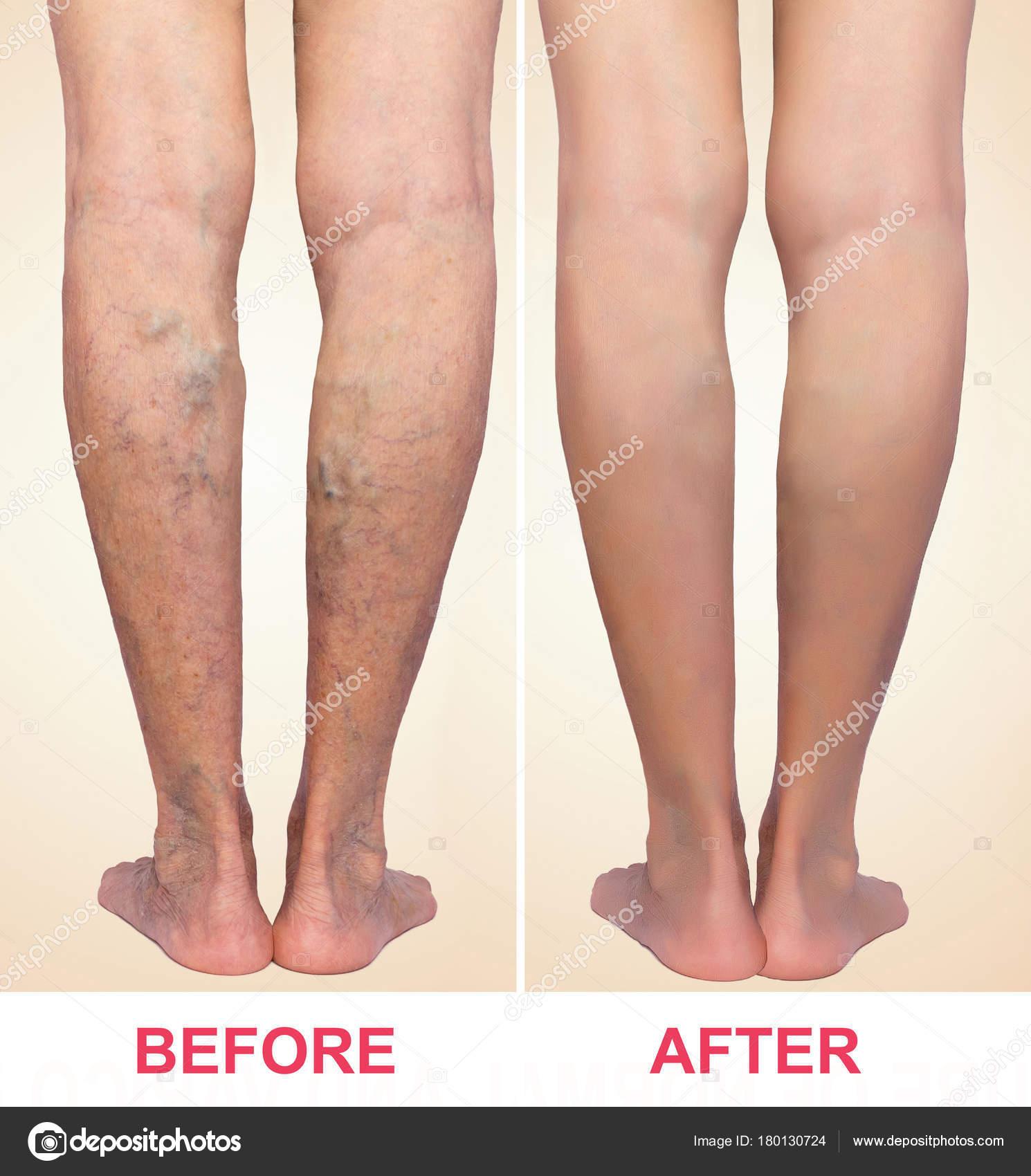 varices jambes traitement