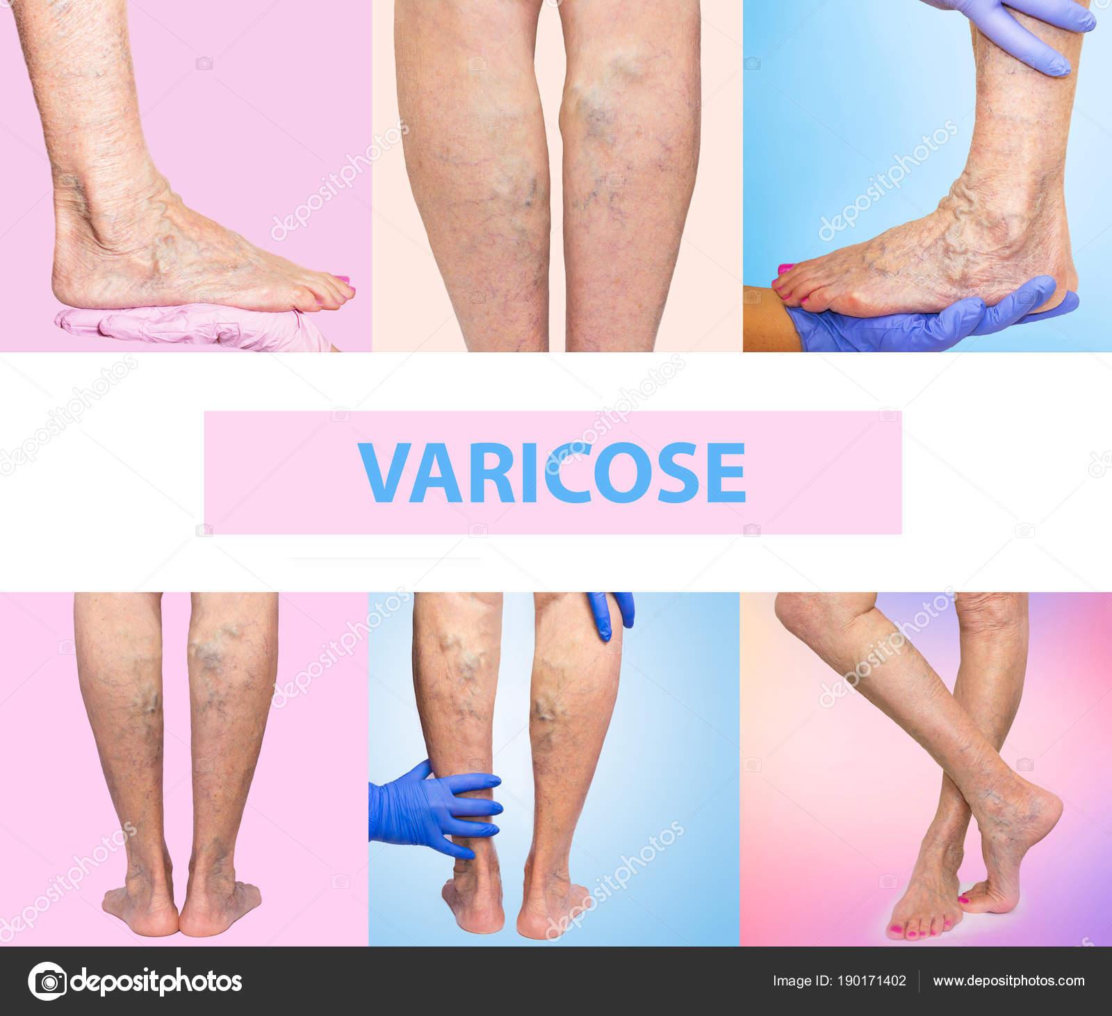 Dolorosas varices, arañas vasculares, varices en una pierna ...