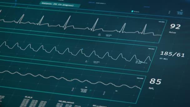 Stav pacienta na JIP lůžkový monitor, stabilní vitální funkce, zdravotní péče