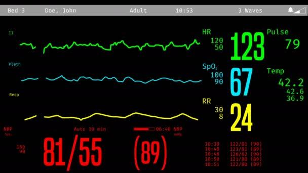JIP obrazovku pro sledování umírajícího pacienta, vitální funkce klesá, klinické smrti