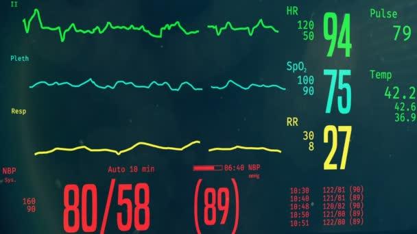Pacient umírá v nemocnici, JIP monitor s umístěním vitální funkce, klinické smrti