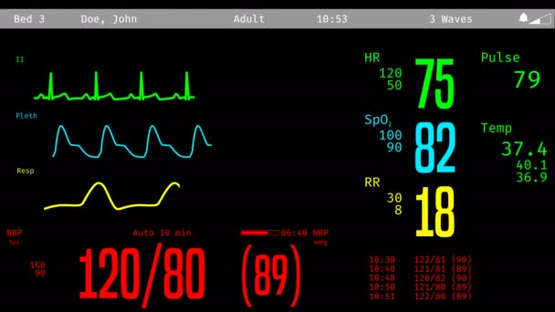 Monitoring of patient's condition, vital signs on ICU monitor in hospital