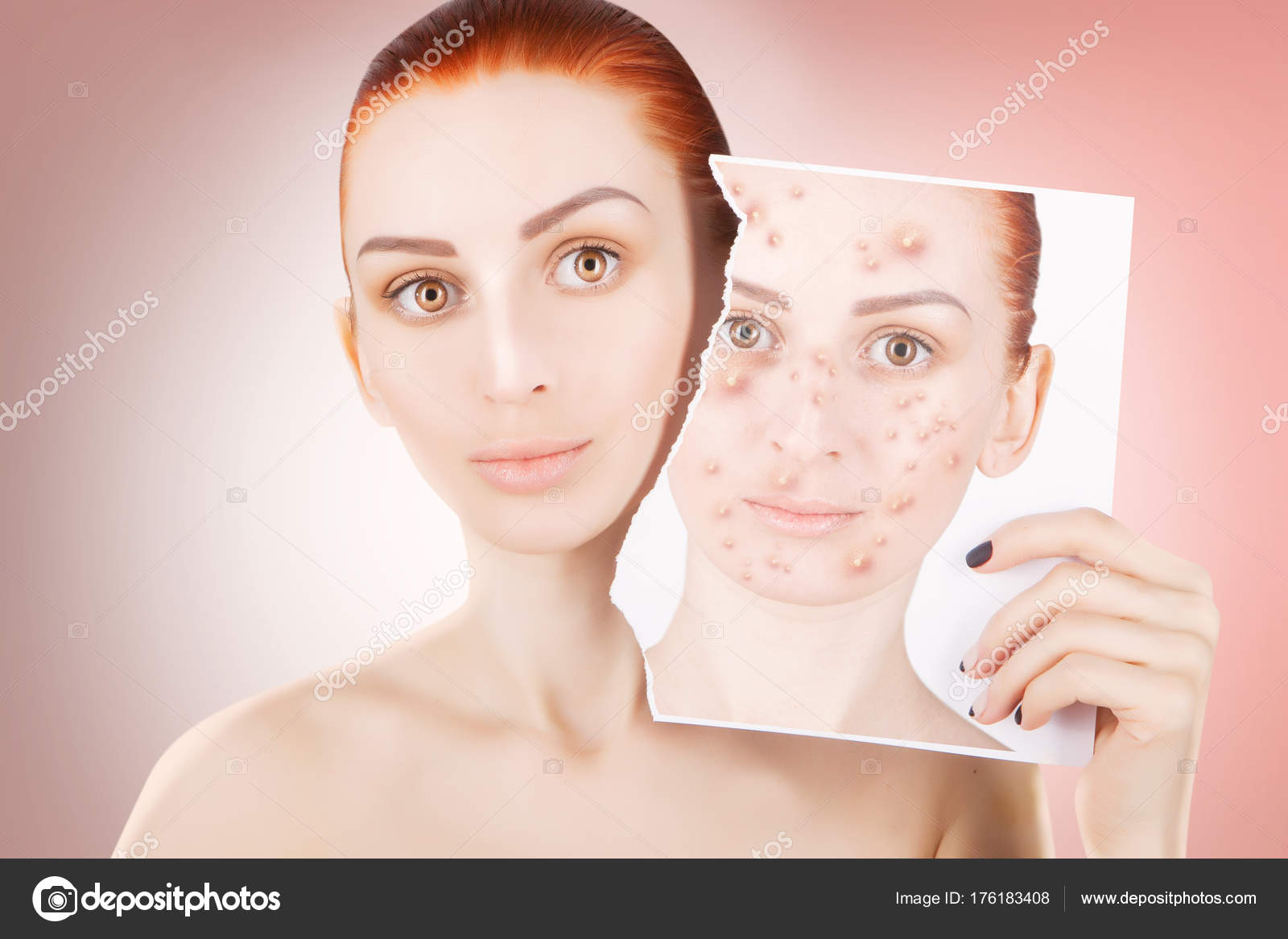 acne problemen