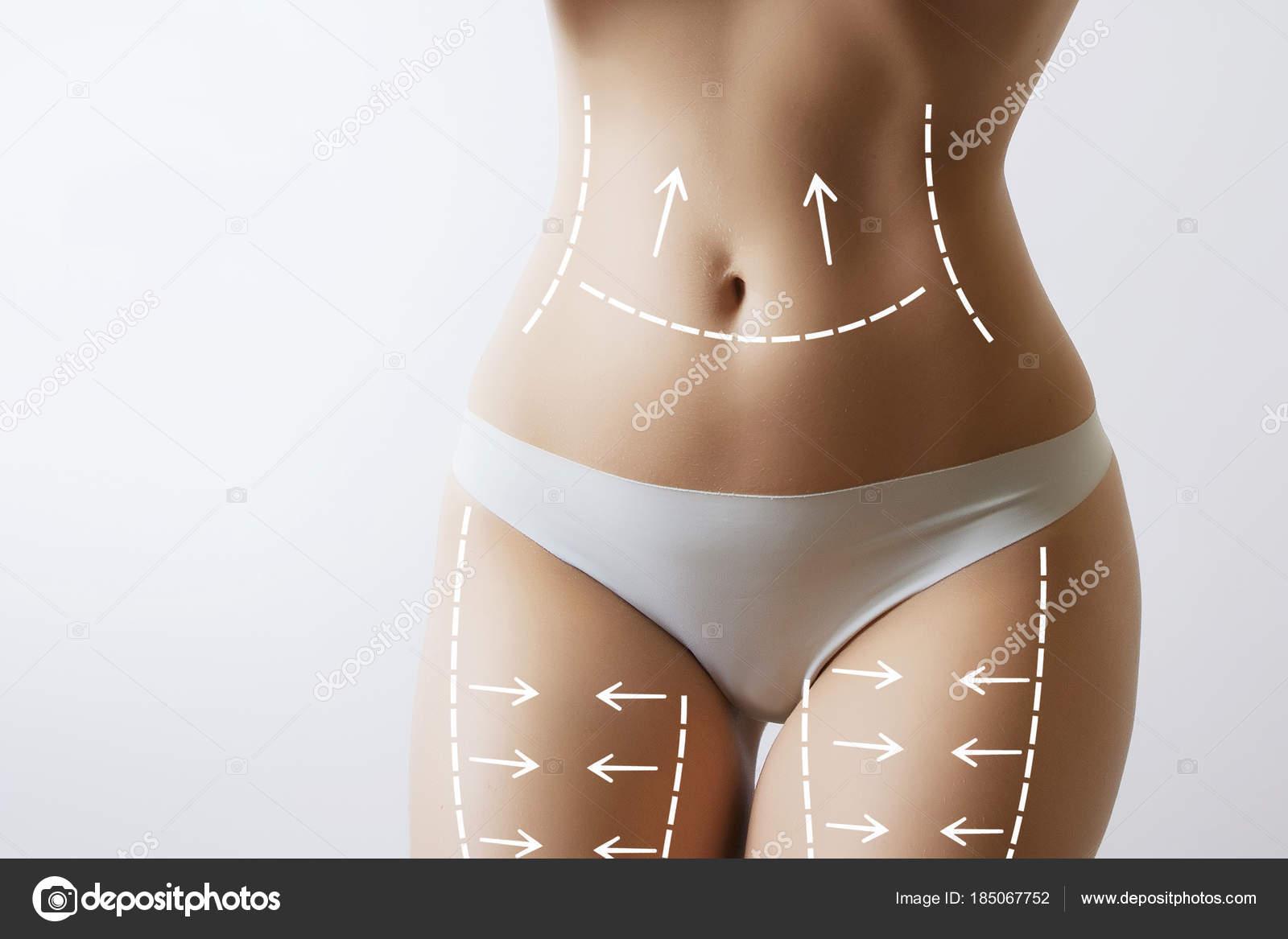 cuerpo de la mujer delgada con marcas en el estómago — Fotos de ...