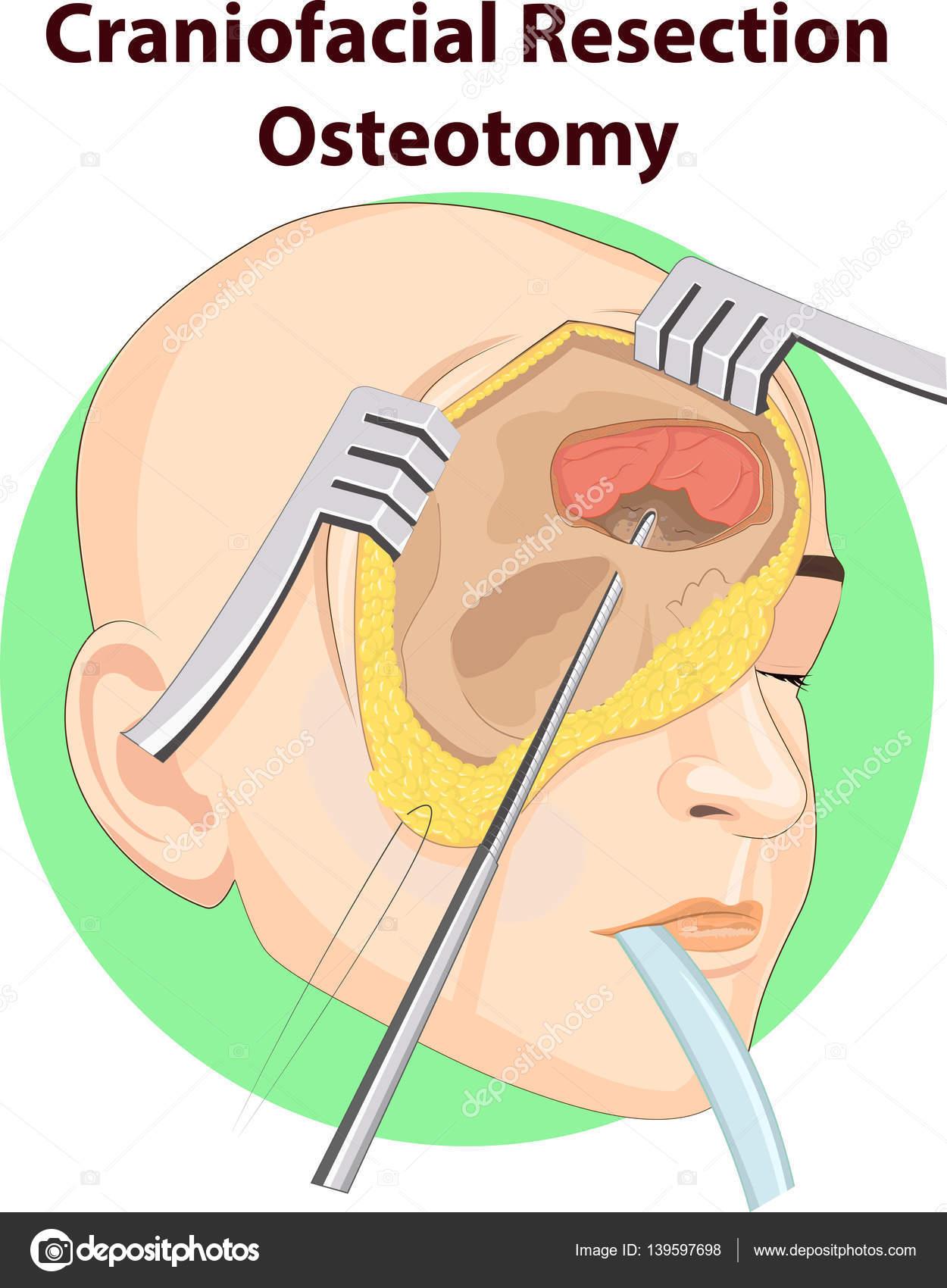 Vektor Illustration Der Schädel Chirurgie Anatomie — Stockvektor ...