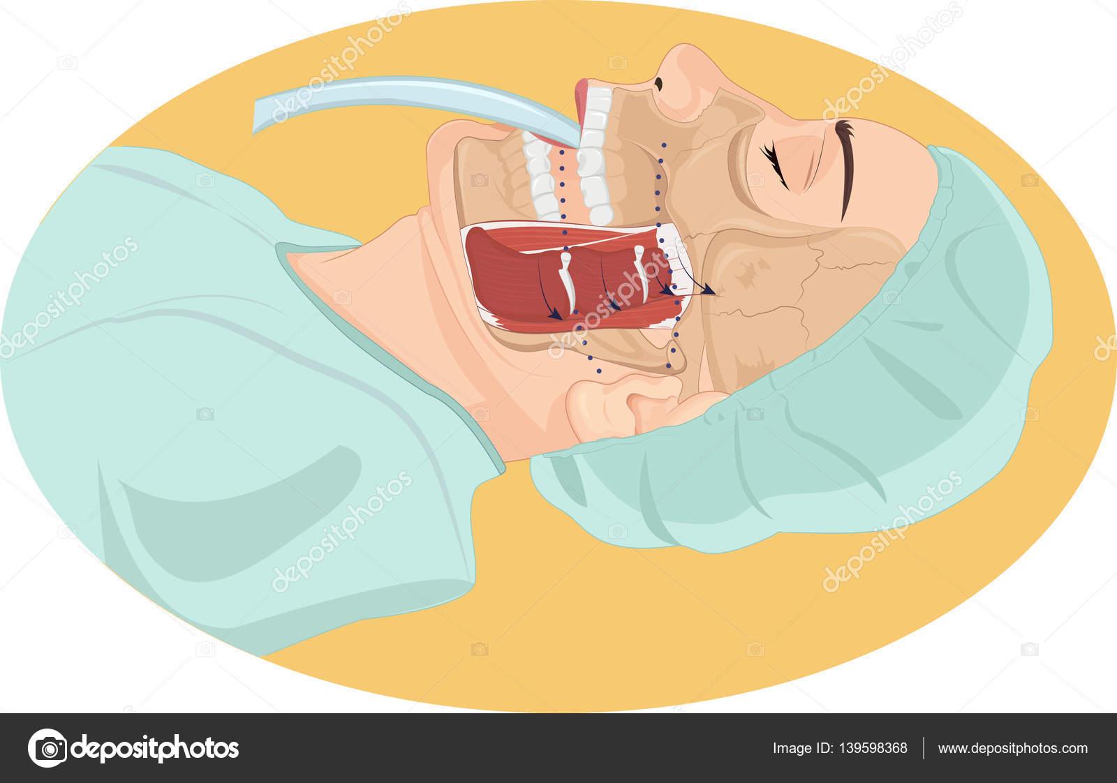 Ilustración Vector Anatomía Del Tubo Traqueal — Vector de stock ...
