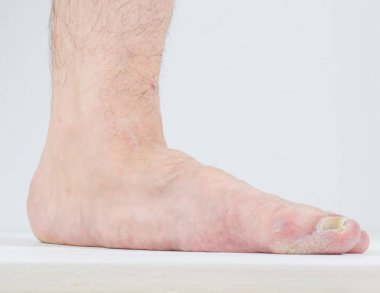 Manifestation of flat feet and fungal diseases.