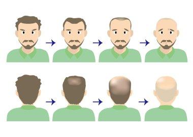 balding head middle men