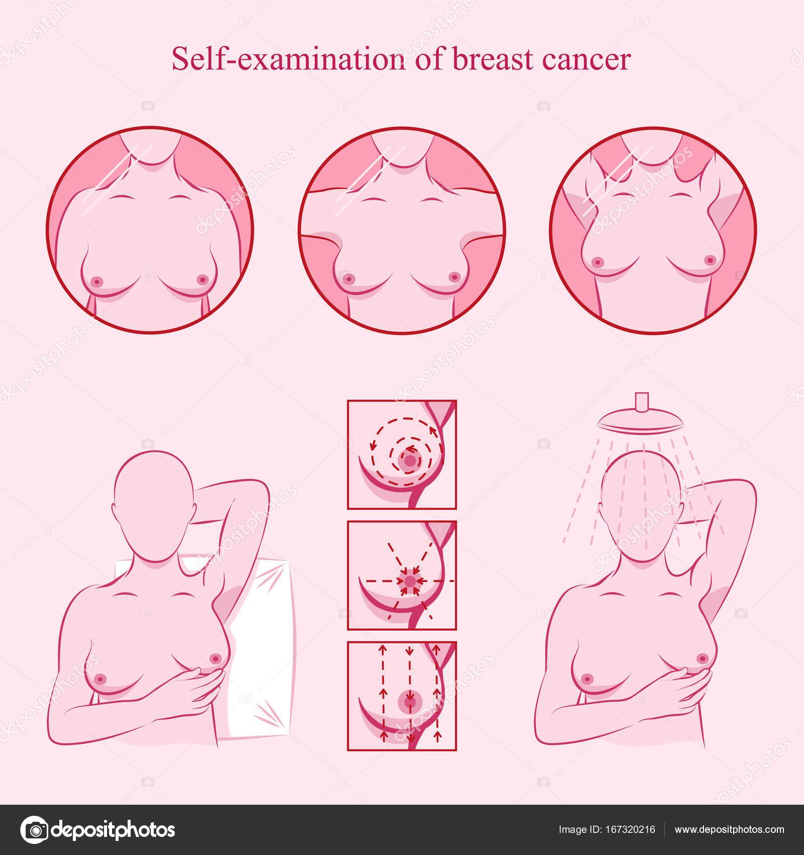 Examen de cáncer de mama — Archivo Imágenes Vectoriales © nayasha ...