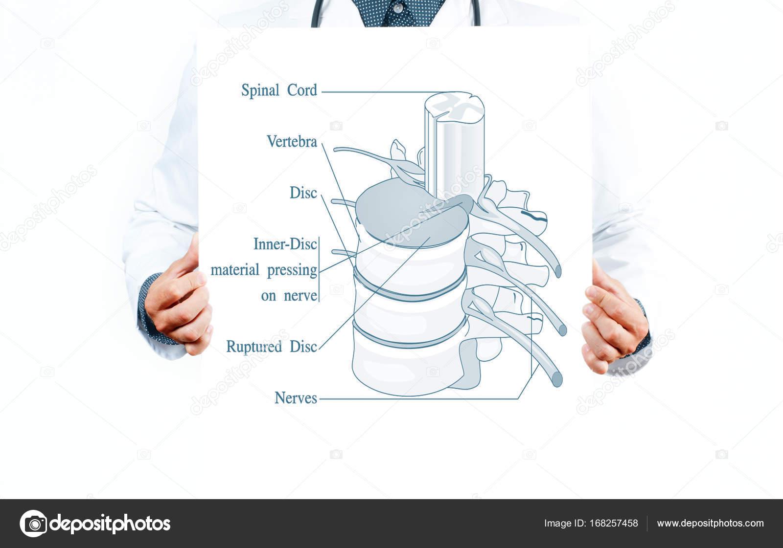 Medicina. Médico y anatómico columna vertebral — Foto de stock ...