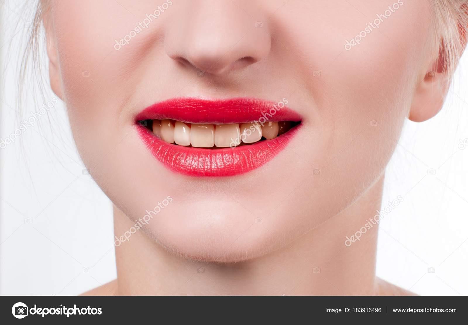 Dentes De Mulher Antes De Branqueamento Clareamento No Dentista