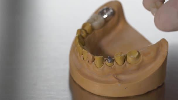 Nahaufnahme Schuss den Zahnersatz, denen ein mans Hand stellt einen echten Zahn