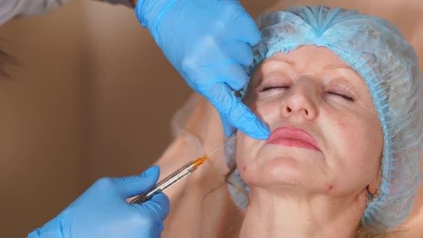 Facelift s pomocí injekční výplně pod kůži ženy
