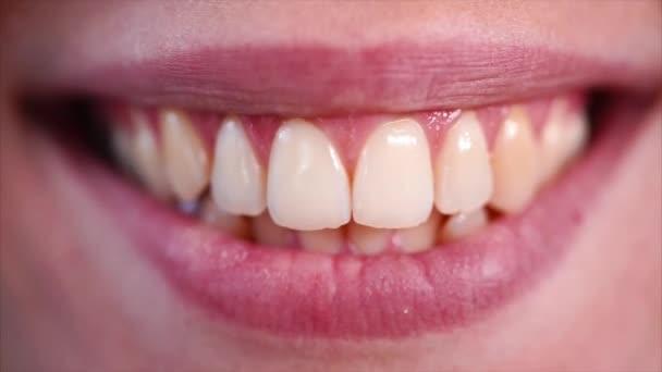 Nő a fogát vicsorítja és mosolyogva