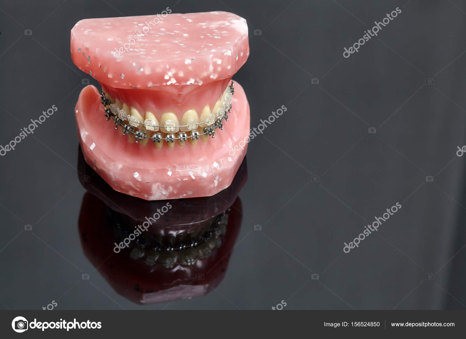 Human jaw or teeth model with metal wired dental braces — Stock ...