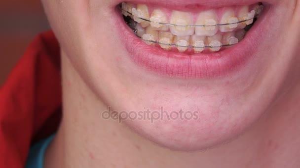 ein junger Mann mit Zahnspange lächelt, lacht