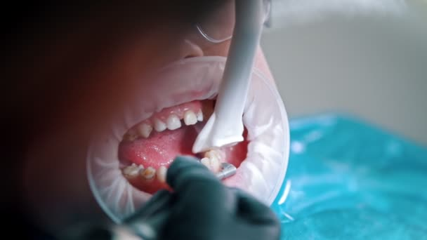 A little boy having a cleaning treatment in the dentistry - collect water with a suction tube from the mouth