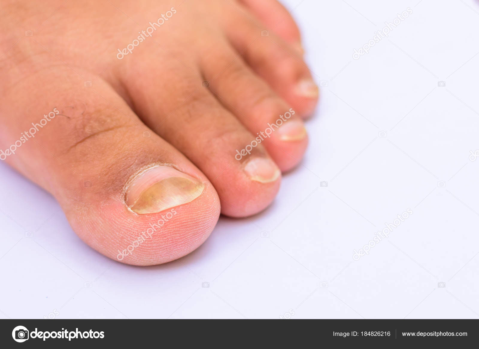 Fungus Infection Nails Asian Women Foot White Background — Stock ...