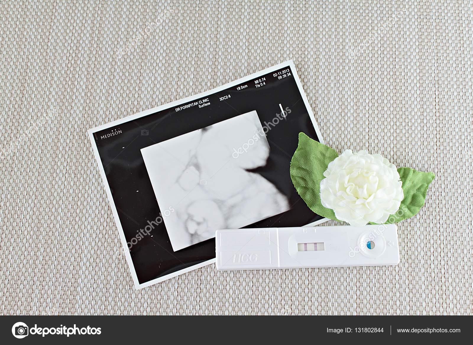 Neues Baby geboren am Ultraschallbild des Babys — Stockfoto ...