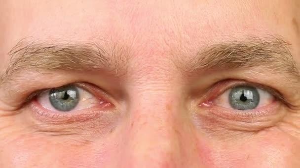 rimpels rond ogen
