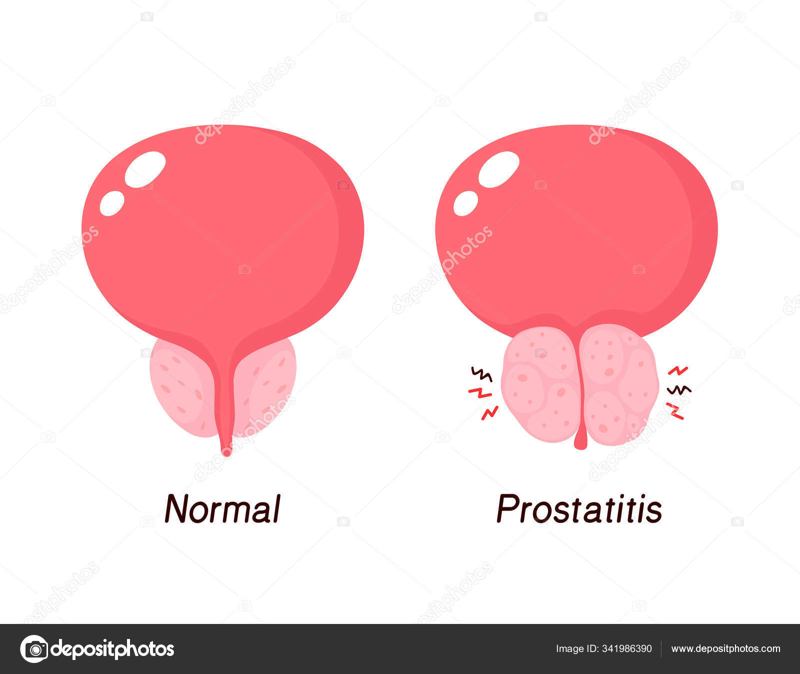 Prostatitis vietnam Neurosis és prosztatitis